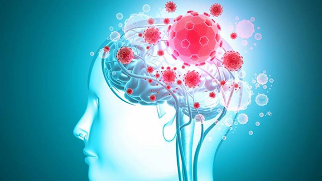 New study warns of brain damages linked to COVID-19